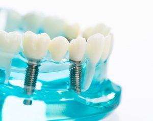Dental implants model with transparent gums