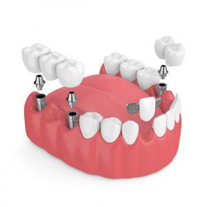 3d model of dental implants and dental bridges scaled