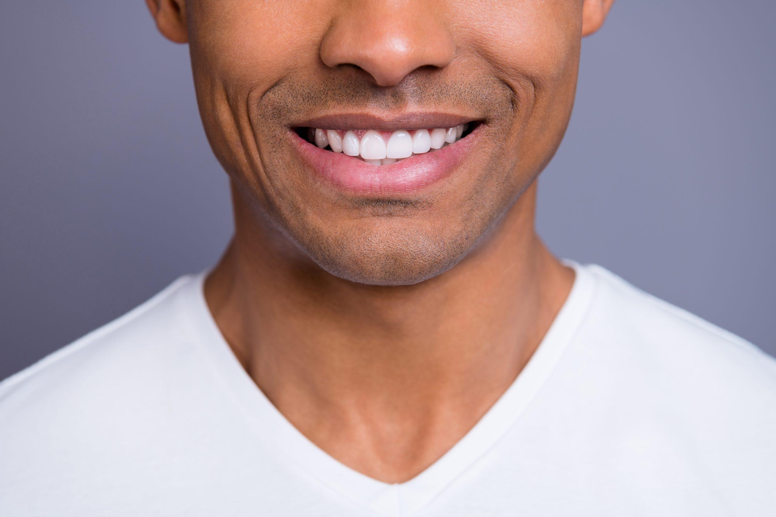 Man smiling to show gum bleaching.