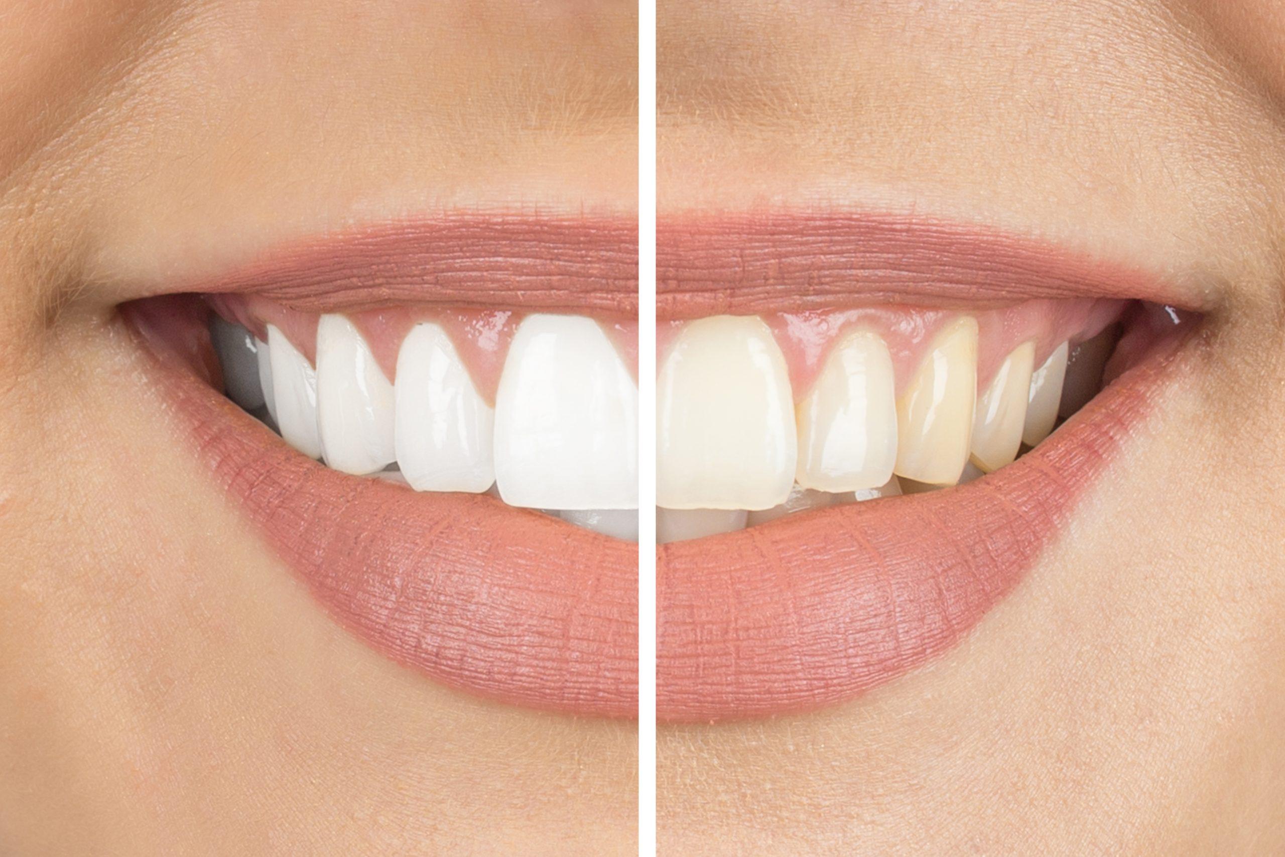 teeth whitening side-by-side