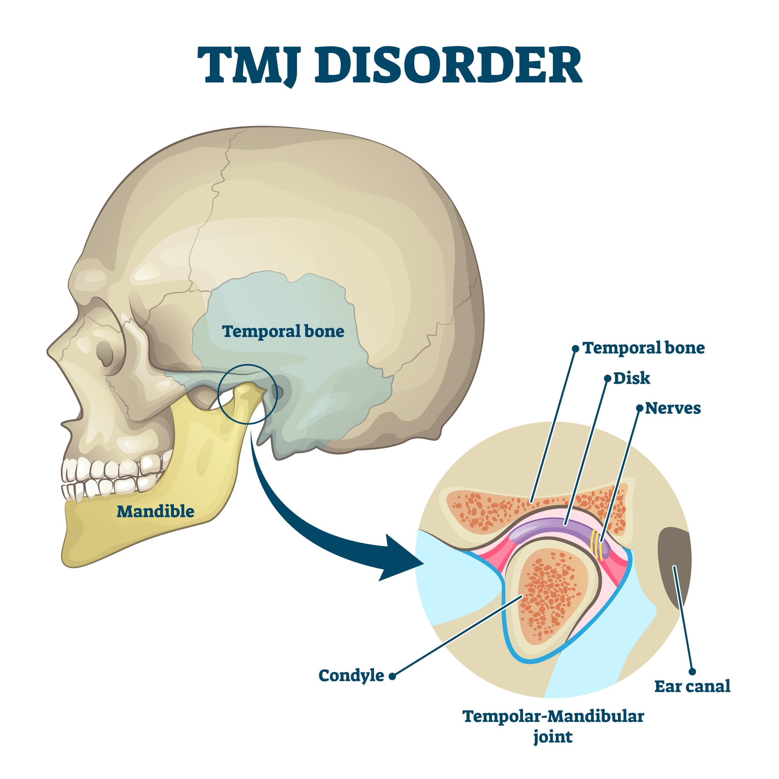 TMJ Disorder diagram
