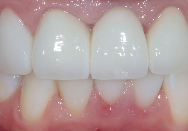 After dental bridges: white, evenly spaced, straight teeth