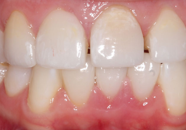 Before dental bridges: stained, uneven teeth