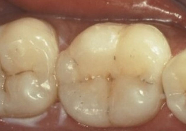 After tooth-colored fillings: natural-looking teeth