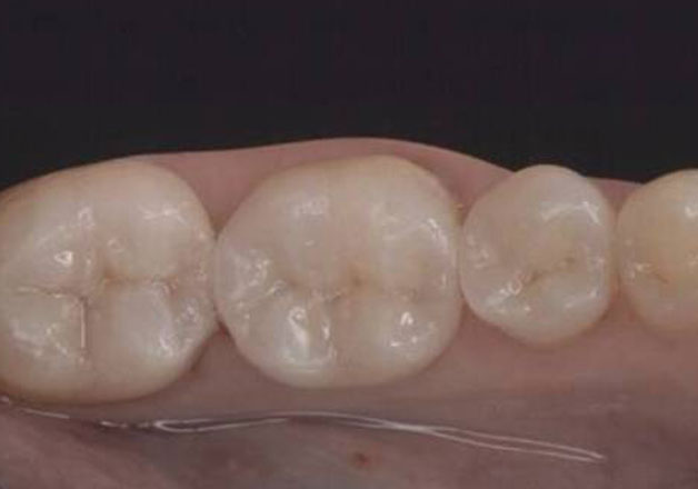 After all-ceramic dental crowns: natural looking teeth