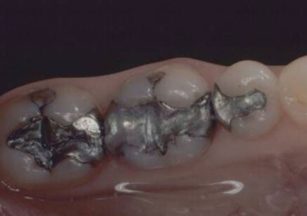 Before dental crowns: Gray fillings