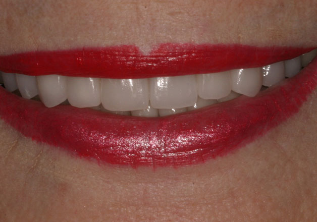 After veneers: Close-up picture of teeth.