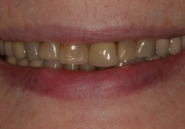 Before veneers: Close-up picture of teeth.