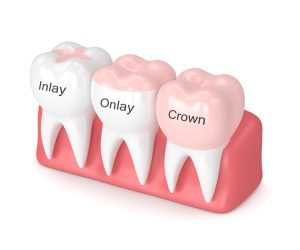 dental inlays and onlays 3D rendering.