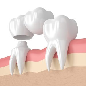 3D illustration of a dental bridge