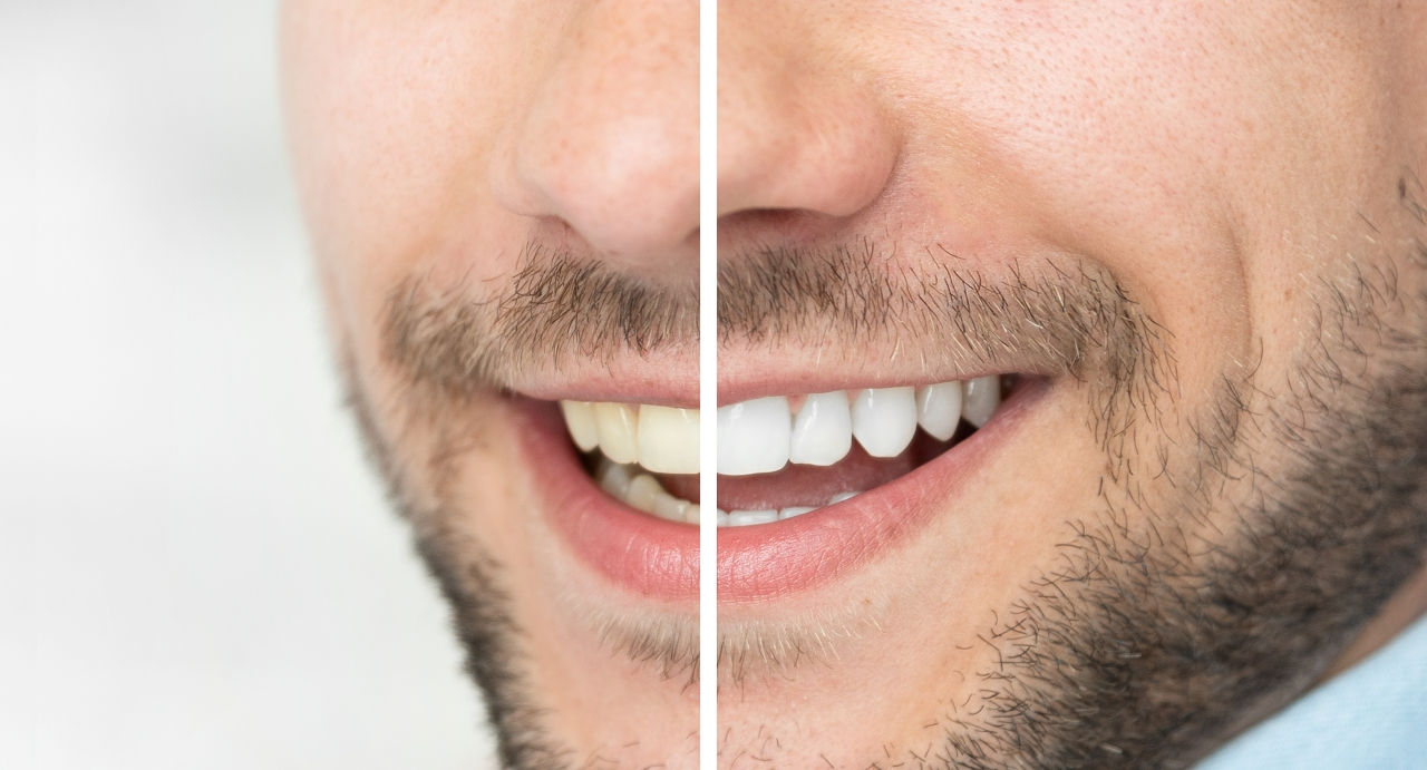 Close up of whitened teeth vs stained teeth side by side
